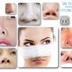 Tổng hợp Sửa Mũi Bị Hư Hỏng trong phẫu thuật thẩm mỹ từ A-Z