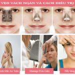 Bật mí cách chữa không cần phẫu thuật khi bị Lệch Vẹo Vách Ngăn Mũi