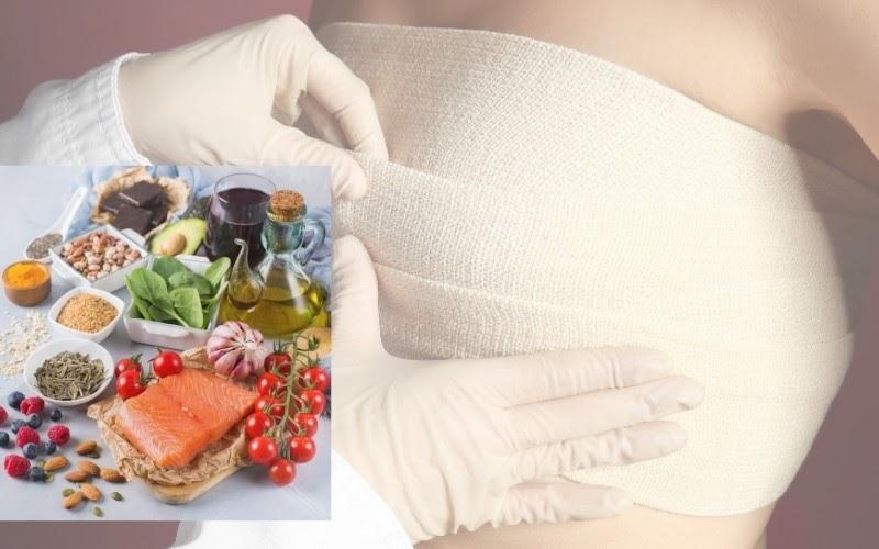 Chế độ ăn kiêng sau nâng ngực