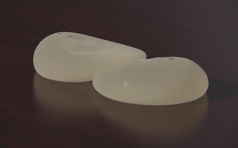 Giải mã sức hút túi ngực hình giọt nước